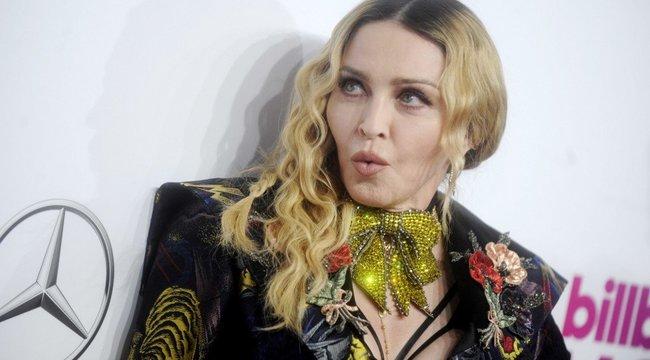 Titokzatos seb éktelenkedik Madonna combján, közvetlenül a bugyivonala mellett - Fotó