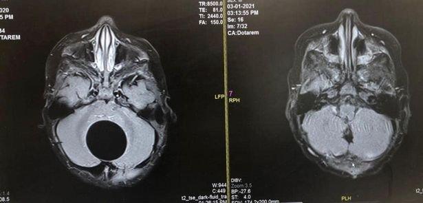 Fogakat és hajat is növesztett egy újszülött agyában terjedő tumor
