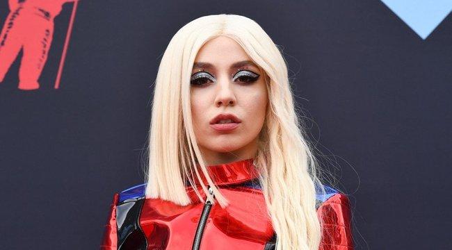 Brutális divatbaki – mégis ki adta ezt a szörnyűséget a fiatal énekesnőre?! fotók