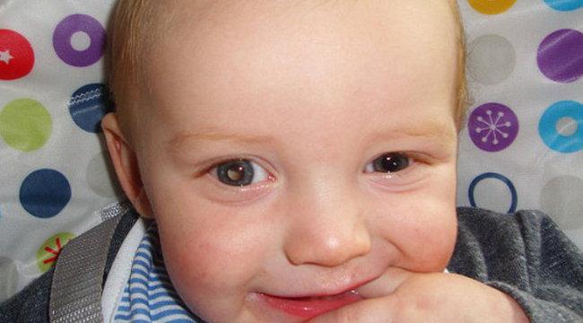 Furcsán fénylett, kivették a kisbaba szemét