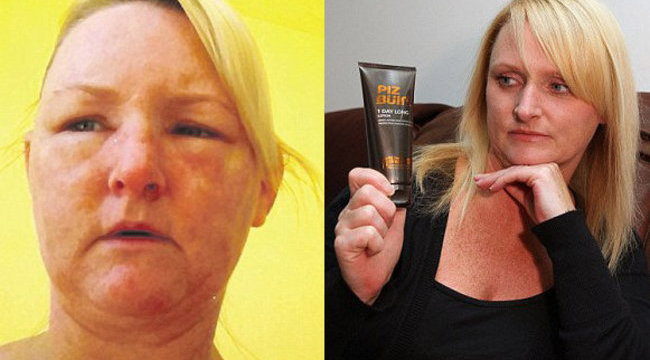 Durva: allergiás reakciótól torzult el a brit nő arca