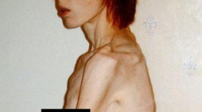 Sokkoló fotó: kegyetlenül elbánt a védőnő a tinilánnyal