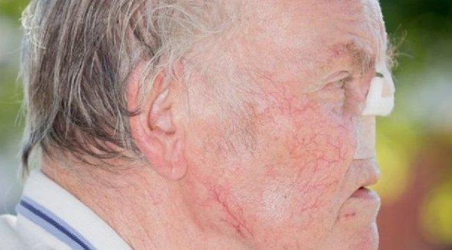 Sokk: az utcán esett le az idős férfi orra