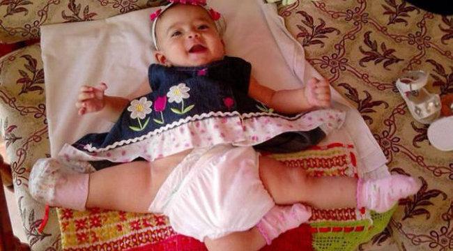 Durva: elhunyt ikertestvérét operálták le róla - fotóval