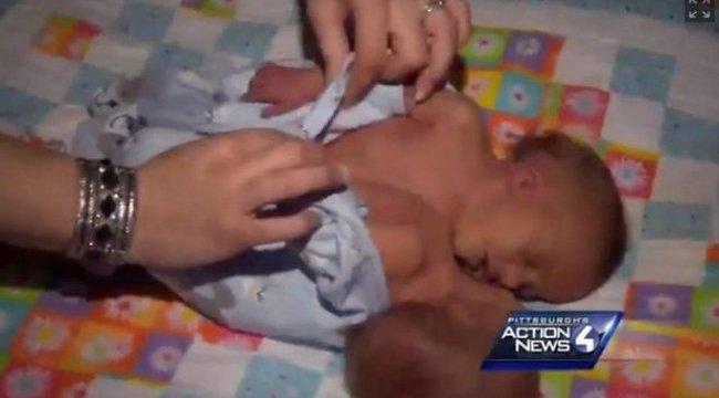 Féltek a szülők a műtéttől, meghaltak az ikrek