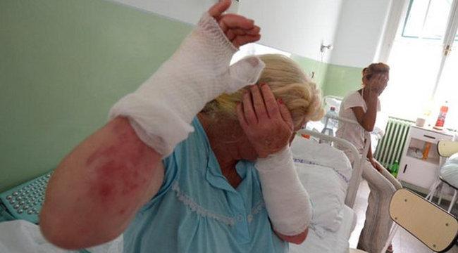 Sírtak a fájdalomtól: 50 nő égett meg Bakson